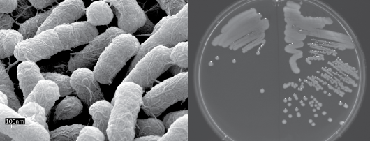 Electron microscopy image of individual Salmonella bacteria (left) and colonies of Salmonella growing on agar (right).