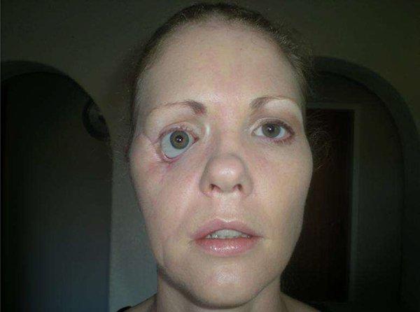 Portrait of woman Vanessa Carter after facial surgery.