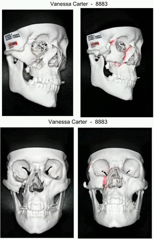 Four photos of Vanessa Carter's skull.